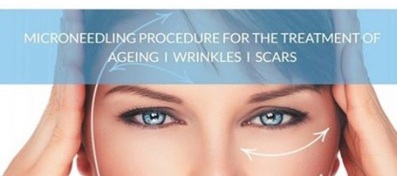 SkinPen Precision – AKA Collagen Induction Therapy or Micro Needling