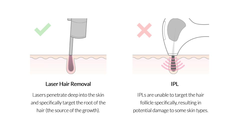 What is the difference between IPL and Laser?