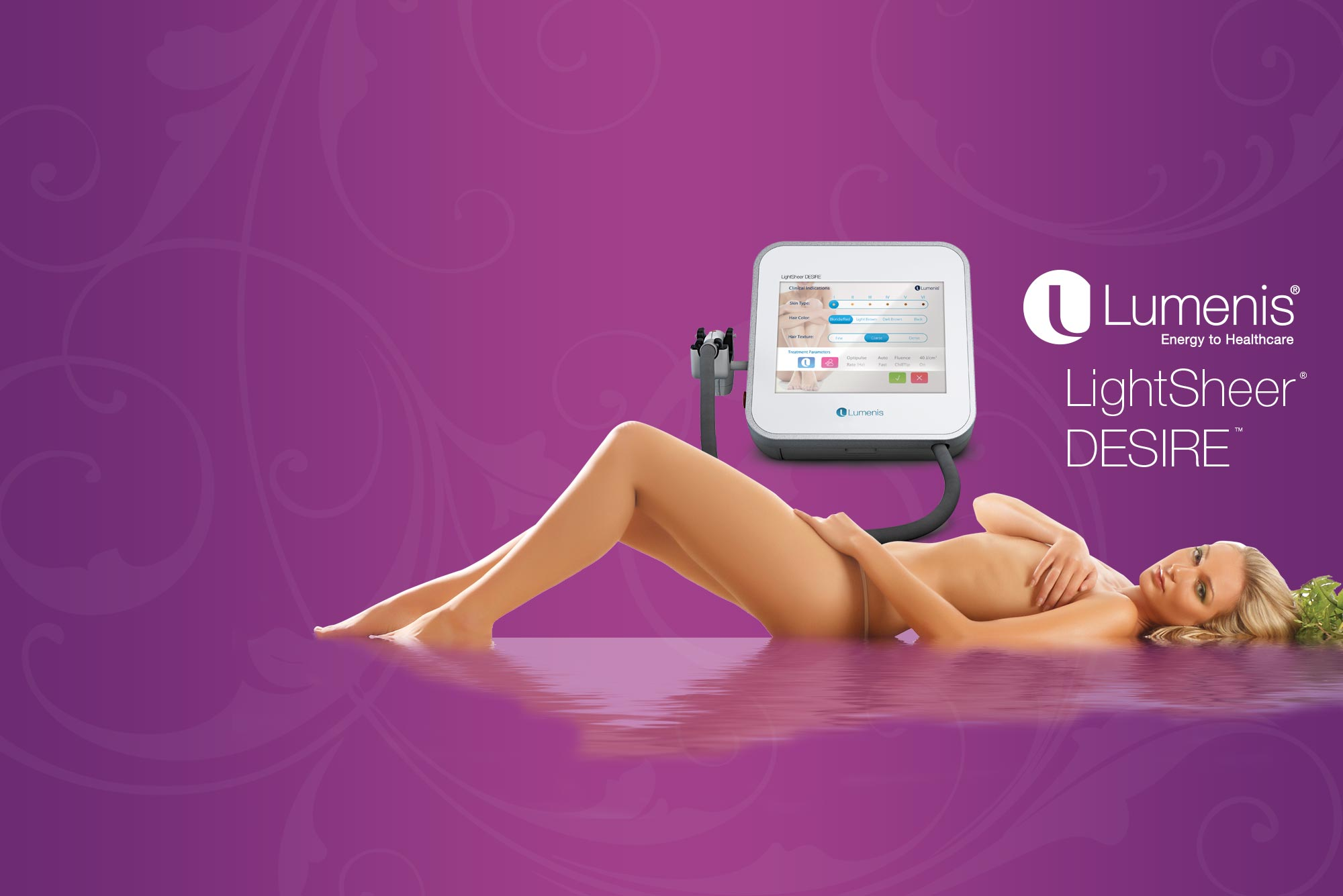 Lumenis laser treatment